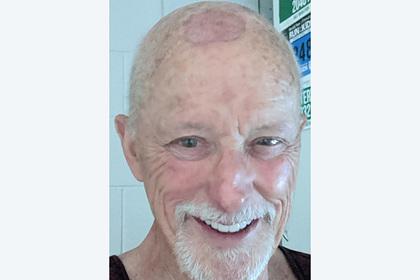 Красные пятна на лысине мужчины оказались симптомом смертельного заболевания