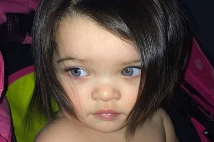 Аномально густые волосы прославили младенца