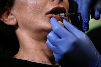В накачанных губах женщины образовались комки из-за неумелого врача