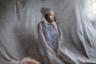 Женщину на фото зовут Налуму. В 2014 году, когда она возвращалась домой с рынка, неизвестный мужчина напал на нее и облил кислотой. Налуму провела несколько месяцев в больнице. Больше всего пострадали ее руки. На теле Налуму остались шрамы, из-за которых теперь соседи называют ее монстром. Сейчас Налуму живет со своей семьей и делает ожерелья на продажу.  <br> <br> Работа, номинированная в категории «Люди», является частью документального проекта «Выжившие» швейцарского фотографа Эрберто Цани (Erberto Zani). Он путешествует по миру и рассказывает о людях, которых облили кислотой.