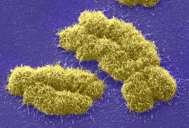 Y- и X-хромосома