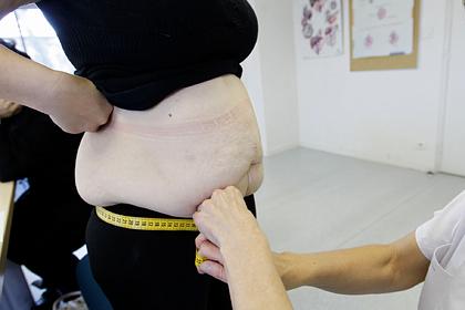 Найден способ похудеть за час без операции