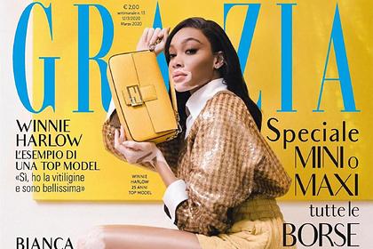 Модель с заболеванием кожи показала пятнистое тело на обложке модного журнала