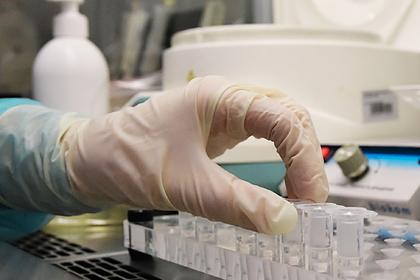 В РФ  навсе 100%  расшифровали геном коронавируса