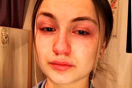 Работающая по 13 часов в день медсестра рассказала о муках зараженных пациентов