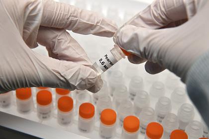 В Москву направят новые тесты для проверки врачей на коронавирус