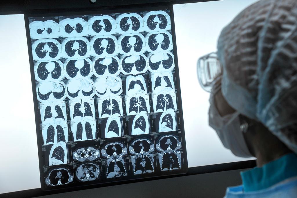 Объяснен вред коронавируса для курильщиков