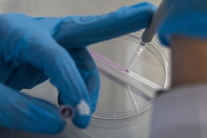 Российские ученые разработали тест для диагностики рака по выдыхаемому воздуху
