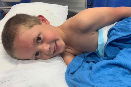 Пятилетний мальчик спас сестру от агрессивного кенгуру и получил тяжелые травмы