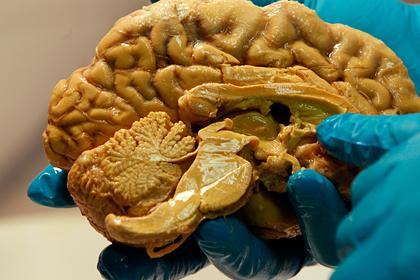 Раскрыт новый способ борьбы со старением мозга