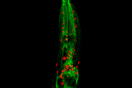 Microscopy image of a C. elegans worm (red: nuclei, in which NFYB-1 is present, green: lysosomes)
