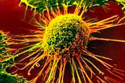 Обнаружена главная причина неизлечимого рака