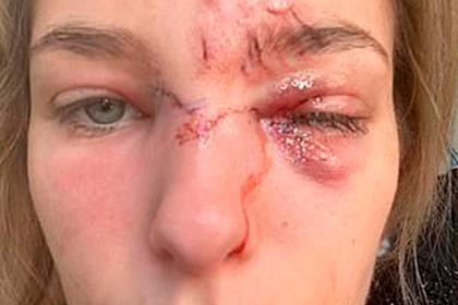 Модель осталась с изуродованным лицом после нападения собственной собаки