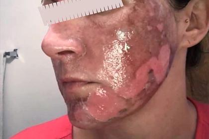 Медсестра показала страшные ожоги на лицах применявших дешевую косметику женщин