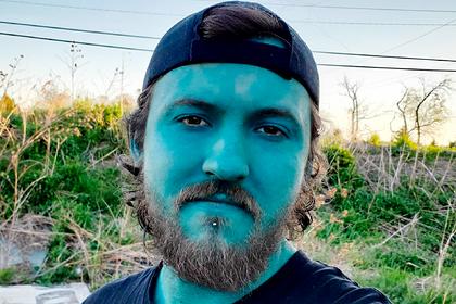 Парень с голубым тату на все тело раскрыл причины своего выбора