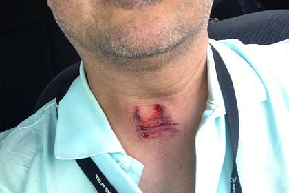 Журналисты показали раны после обстрелов полицией во время протестов в США