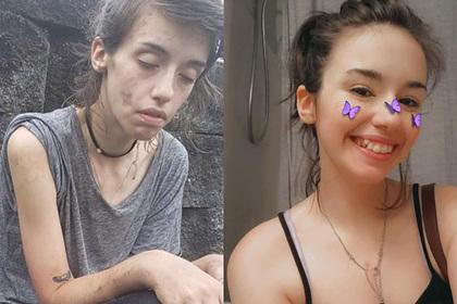 Девушка бросила наркотики и удивила людей преображением до неузнаваемости