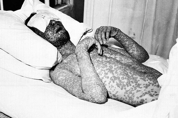 Как наука победила самую страшную болезнь в истории человечества [Обзор / Медицина]