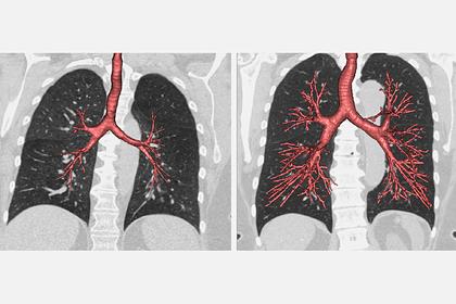 Выяснено происхождение рака легких у некурящих