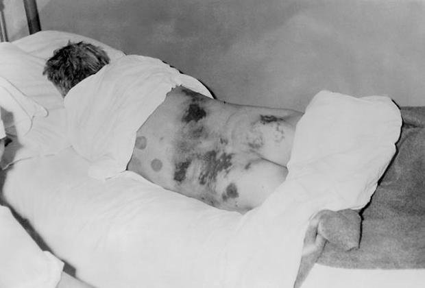 Больной Конго-Крымской геморрагической лихорадкой