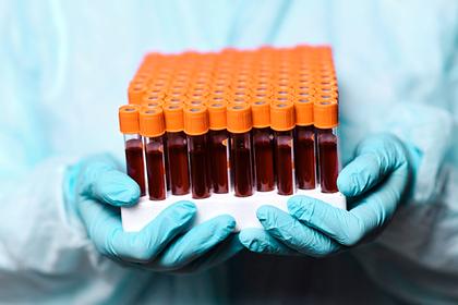 В России число случаев заражения коронавирусом превысило 537 тысяч