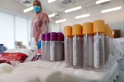Число тестирований на антитела к коронавирусу увеличат втрое в Подмосковье