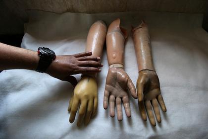 Российские врачи заплатят за ампутацию руки получившего перелом ребенка