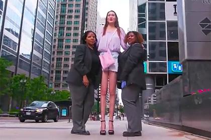 Двухметровая девушка рассказала о жизни с аномально длинными и худыми ногами