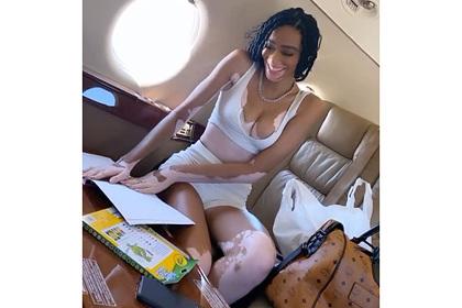 Модель с заболеванием кожи показала декольте и перелет в роскошном самолете