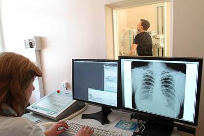 Названы российские регионы с самой высокой заболеваемостью туберкулезом