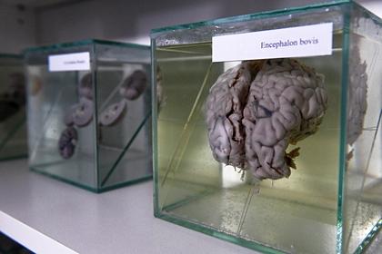 Диетолог рассказала о разрушающих мозг продуктах