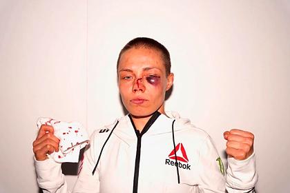 Гематома на лице девушки-бойца после турнира UFC испугала фанатов