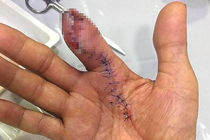 Мужчина укололся о креветку и остался без половины пальца