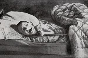 Умирающий от голода ребенок в больнице Самары. 1921-1923 гг.
