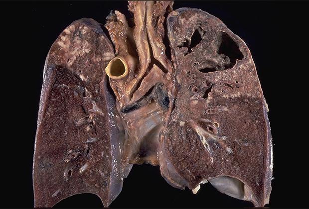 Легкие, пораженные туберкулезной палочкой