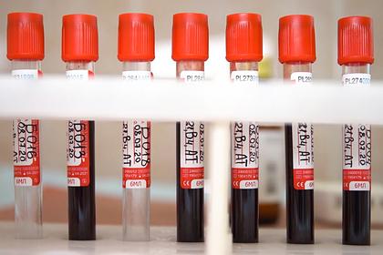 Разработчик российской вакцины от коронавируса объяснил ее быстрое появление