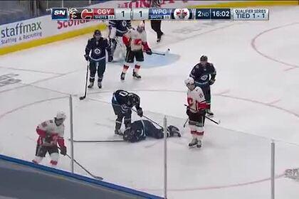 Игрок НХЛ получил шайбой по лицу и залил лед кровью