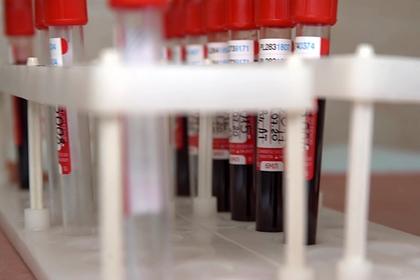 В России ответили на призыв отложить регистрацию вакцины от коронавируса