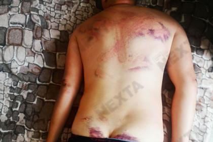 Освобожденные из изолятора белорусы показали следы избиений