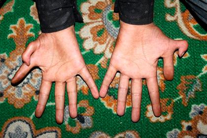 Мальчик с шестью пальцами на каждой руке похвастался успехами в играх и крикете