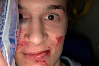 Полиция возбудила дело после избиения блогера Егора Жукова