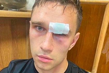 Избитый Широковым судья рассказал о попытках знакомых футболиста замять дело