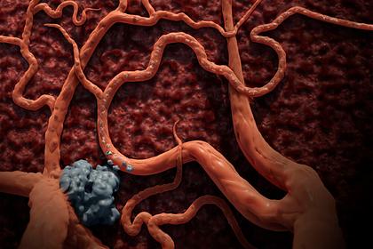 Раскрыта причина появления неизлечимого рака
