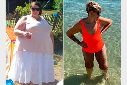 Учительница похудела на 102 килограмма и осталась с 13 килограммами лишней кожи