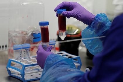 Названы повышающие риск заражения коронавирусом группы крови