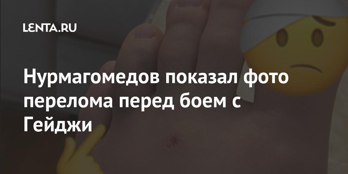 Photo of Нурмагомедов показал фото перелома перед боем с Гейджи | Lenta.ru
