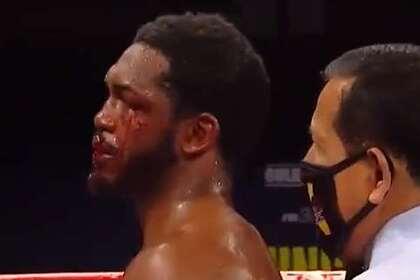 Боксер порвал губу сопернику апперкотом и победил