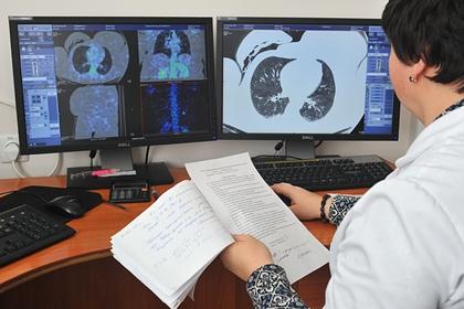 Врачи объяснили сложность выявления рака на ранней стадии