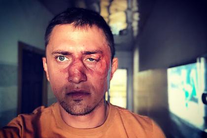 Прилучный опубликовал фото с разбитым лицом и рассказал о своем состоянии