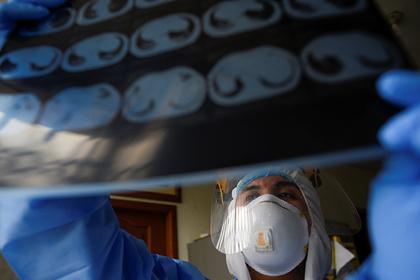 Врач назвал способ отличить коронавирус от рака легких